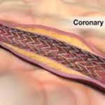 Global Coronary Stents Market 2017- Abbott Vascular, Medtronic, Boston Scientific, Biosensors, Terumo, MicroPort